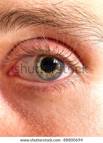 Bicolor eye of a young man - stock photo
