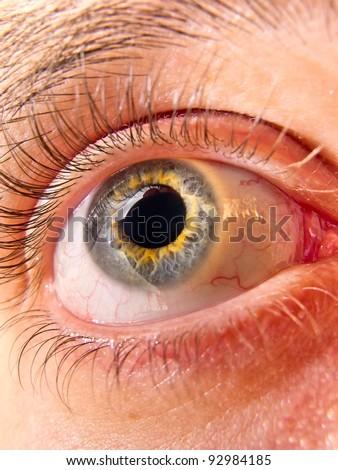 Bicolor eye of young man - stock photo