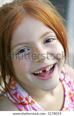 big smile with missing tooth - stock photo