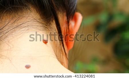 Birthmark on skin. Mole closeup - stock photo