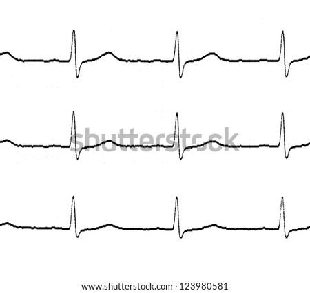 Black and white electrocardiogram (ecg) - stock photo