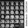 black and white head magnetic resonance image - stock