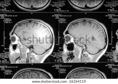 black and white head magnetic resonance image - stock photo