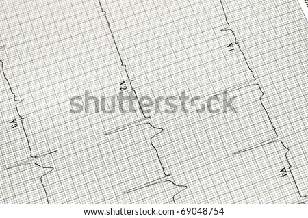Black and white image of an EKG strip useful as background for a variety of medical images - stock photo