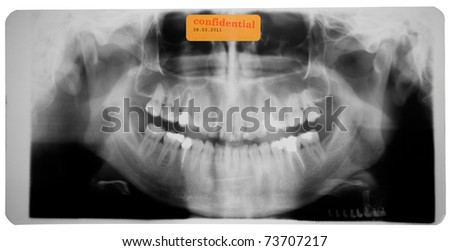 black and white photo of head x-ray - stock photo