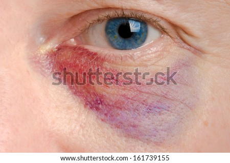 Black eye on a caucasian man close up - stock photo