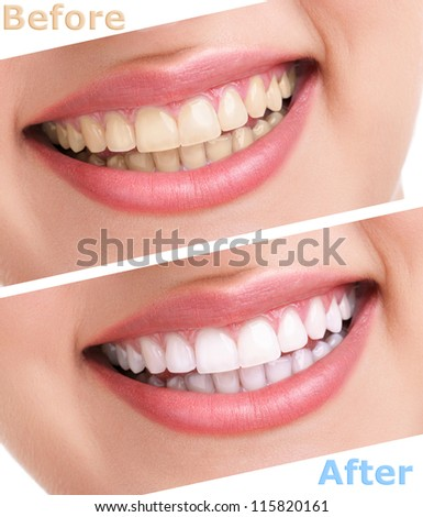 bleaching teeth treatment , close up, isolated on white, before and after - stock photo