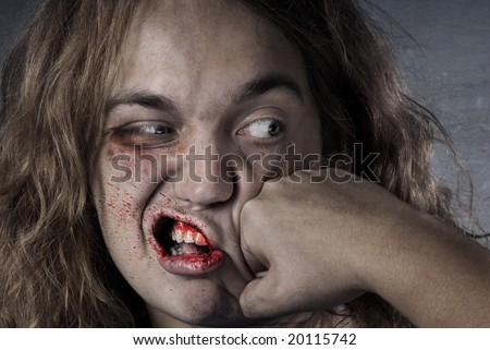 Bleeding human face damaged by knock out - stock photo