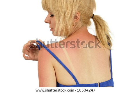 Blond female with a bad sunburn on her back. - stock photo