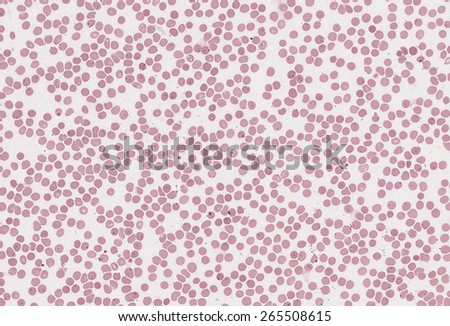 blood cells in the microscopic view - stock photo