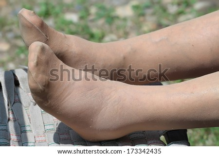 Blood circulation problem, swollen feet of a Senior woman - stock photo
