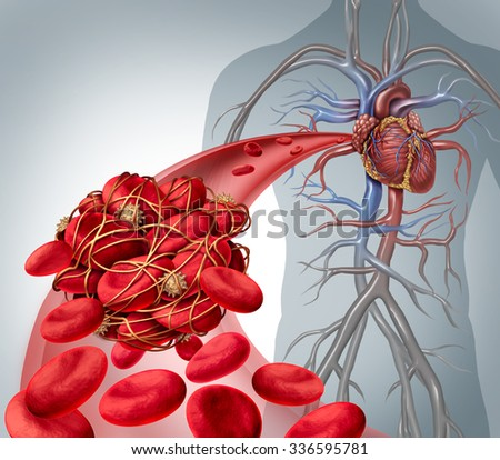 Blood clot risk and thrombosis medical illustration as a group of human blood cells clumped together by sticky platelets and fibrin creating a blockage in an artery or vein leading to the heart. - stock photo
