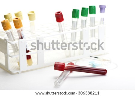 Blood collection tubes in tube rack with blue butterfly catheter.