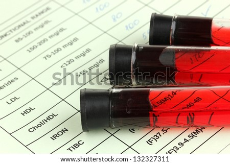 Blood in test tubes and results close up - stock photo