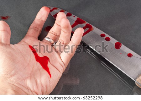 Blood on Hand - stock photo