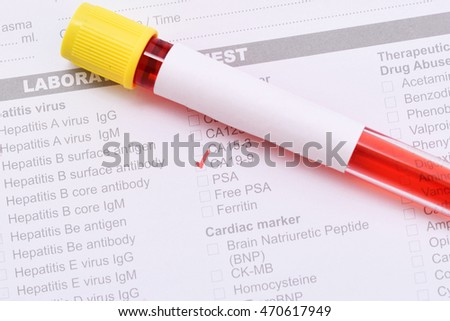 Blood sample for CA 19-9 test, pancreatic cancer diagnosis