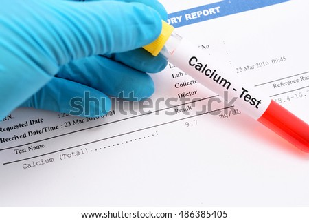 Blood sample for calcium test with result