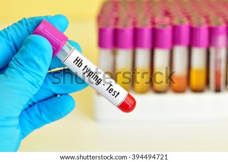 Blood sample for hemoglobin (Hb) typing test, thalassemia diagnosis - stock photo