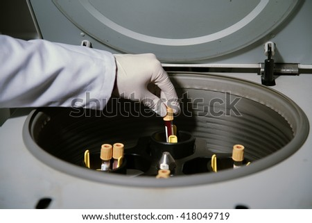 blood serum extraction process - stock photo