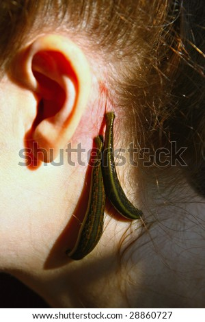 Blood sucking leeches (Hirudo medicinalis) on woman's head - stock photo
