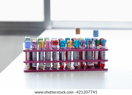 blood tubes labeled with barcodes in the laboratory / Rack with blood samples in tubes in the lab - stock photo
