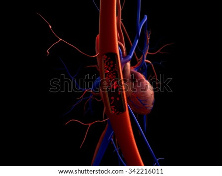blood vessels, artery shown with a cut out section, High quality rendering with original textures and global illumination, Contraction of blood vessels on a heart background - stock photo