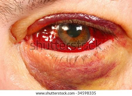 Yellow Ring When I Rub My Eyes