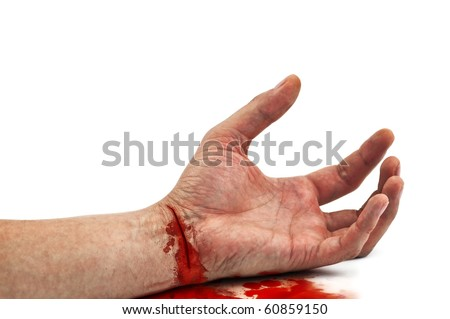 bloody hand isolated on white - stock photo