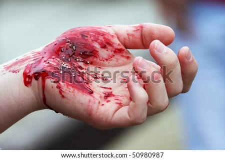 bloody wounds on hands - stock photo