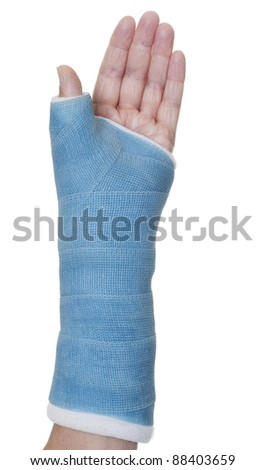 Blue cast on hand and arm isolated on white - stock photo