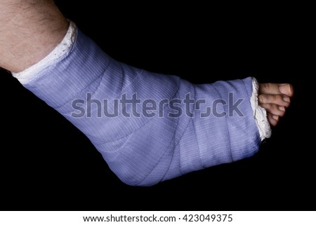 Blue plaster and fiberglass leg cast worn by a young man(isolated on black) - stock photo