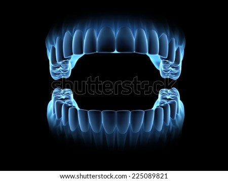 Blue x-ray teeth with open mouth. (on front view) - stock photo