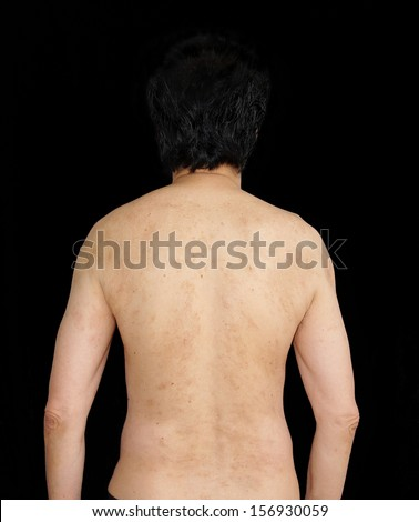 body parts rear view of  human back, shoulder, spine ,arms , elbow to wrist . black background