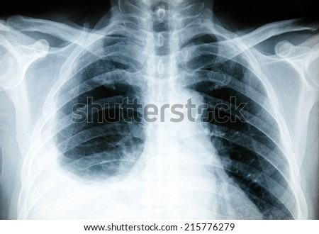 Body x-ray photo The patients with the disease of pleurisy. Caused by the inflammation of the pleural cavity. The inflammation around the lungs. - stock photo
