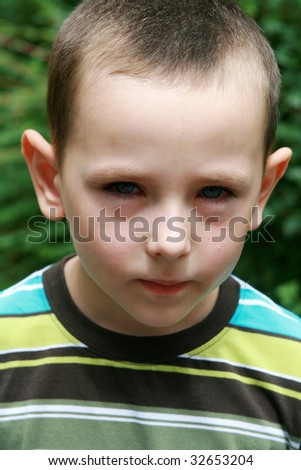 Boy with allergy, conjunctivitis and black rings round his eyes - stock photo