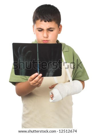 boy with broken arm  looking at his  his x-ray - stock photo