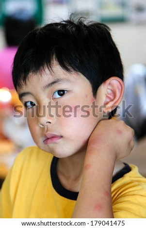 Boy with multiple mosquito bites on face and arm - stock photo
