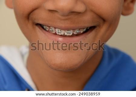Brace smile - stock photo