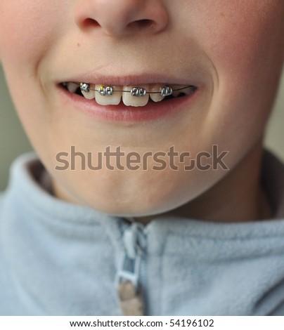 braces - stock photo
