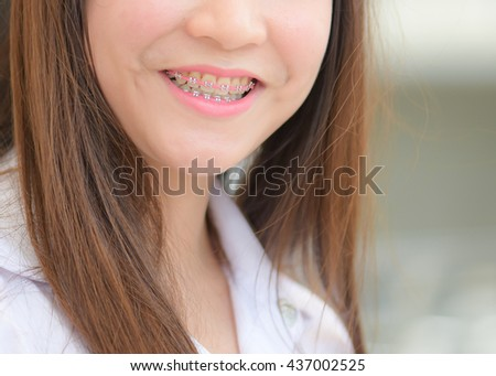 braces and white teeth of smiling girl - stock photo