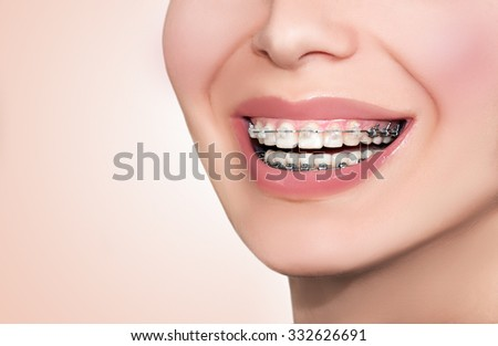 Braces. Close up Teeth with clear ceramic and metal brackets. Braces smile. - stock photo