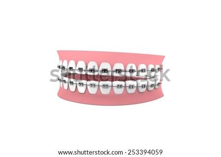 Braces-Orthodontics - stock photo