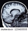 Brain and head MRI ( magnetic resonance imaging ) - stock photo