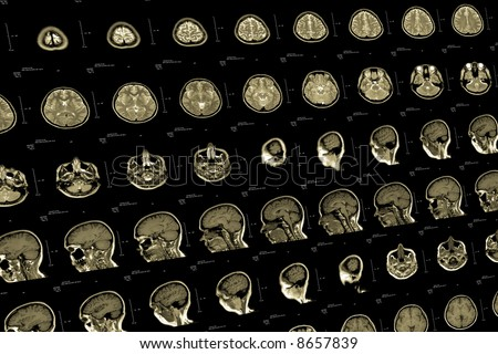 Brain and head MRI or CT images - stock photo