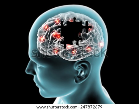 Brain degenerative diseases Parkinson, Alzheimer, puzzle - stock photo