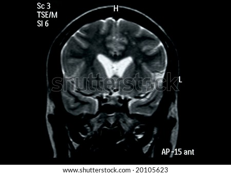 brain mri scan image for medical diagnosis