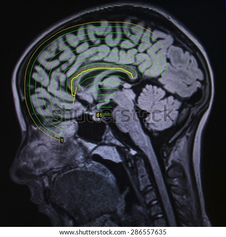 Brain MRI - seizures - stock photo