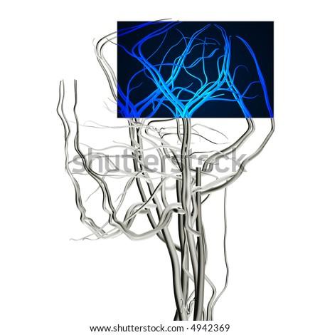 Brain MRI X-ray - stock photo