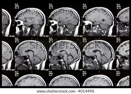 Brain Tomography - stock photo