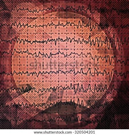 brain wave on electroencephalogram EEG for epilepsy, design element - stock photo